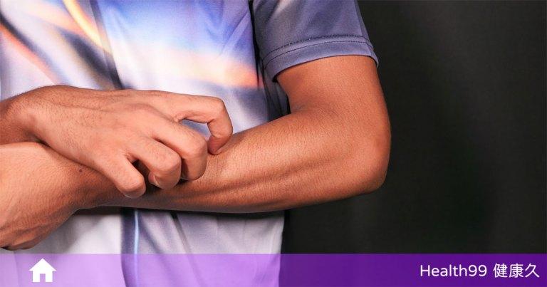 我這樣是敏感肌嗎?帶你認識何謂「敏感肌」:敏感肌該如何保養?哪些是不該犯的錯誤?