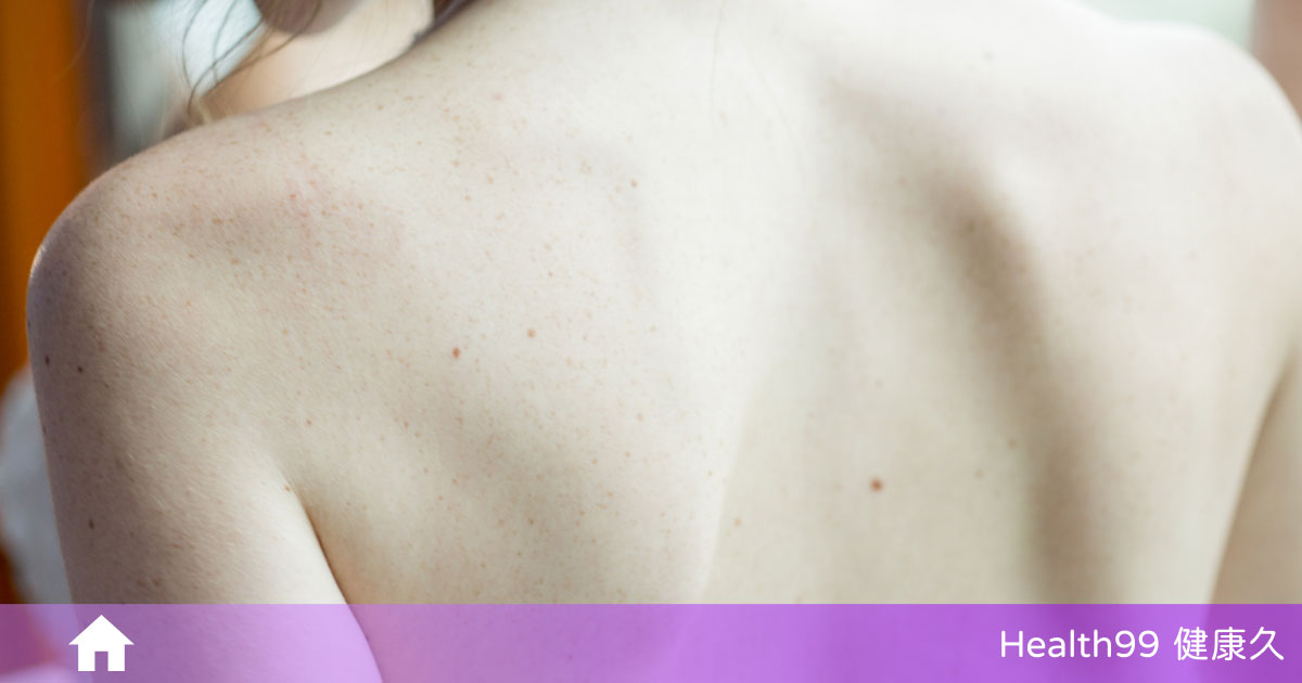 You are currently viewing 你有毛囊角化症嗎?該如何預防毛囊角化症?告訴你正確的護理方式