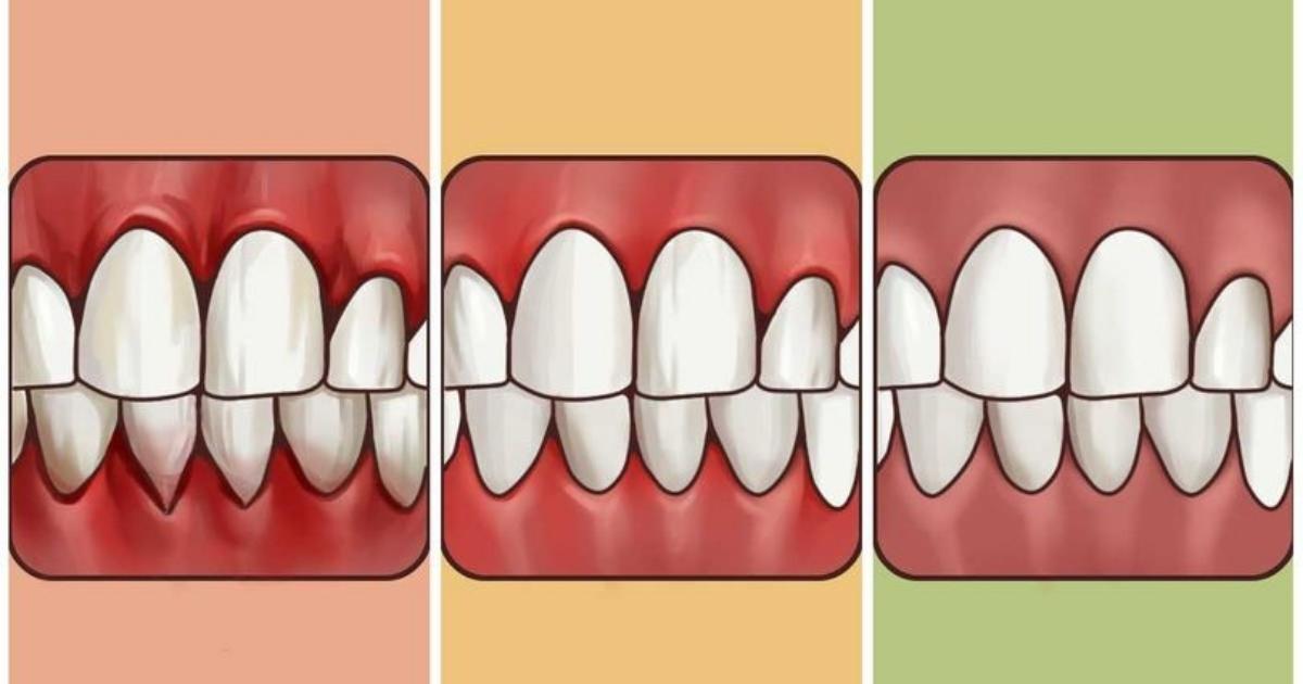 打擊牙齦炎!牙齦疼痛有沒有辦法減緩?這幾種方法讓你跟可惡的牙齦炎說bye bye!