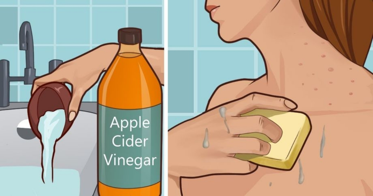 【成份功效】治療皮膚問題可以靠「蘋果酒醋」?蘋果酒醋的幾大好處你一定要知道!