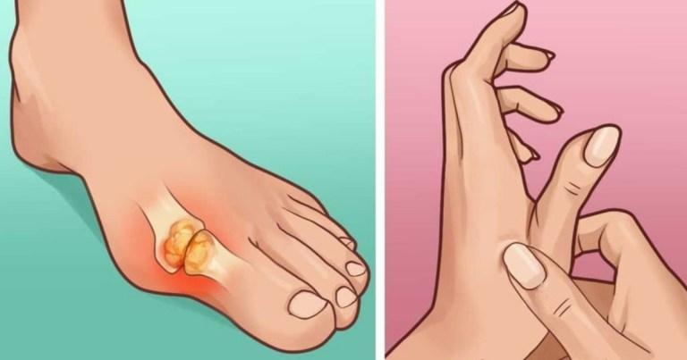 「痛風」不要來!這幾種方法可以減緩你的疼痛,避免痛風發作~