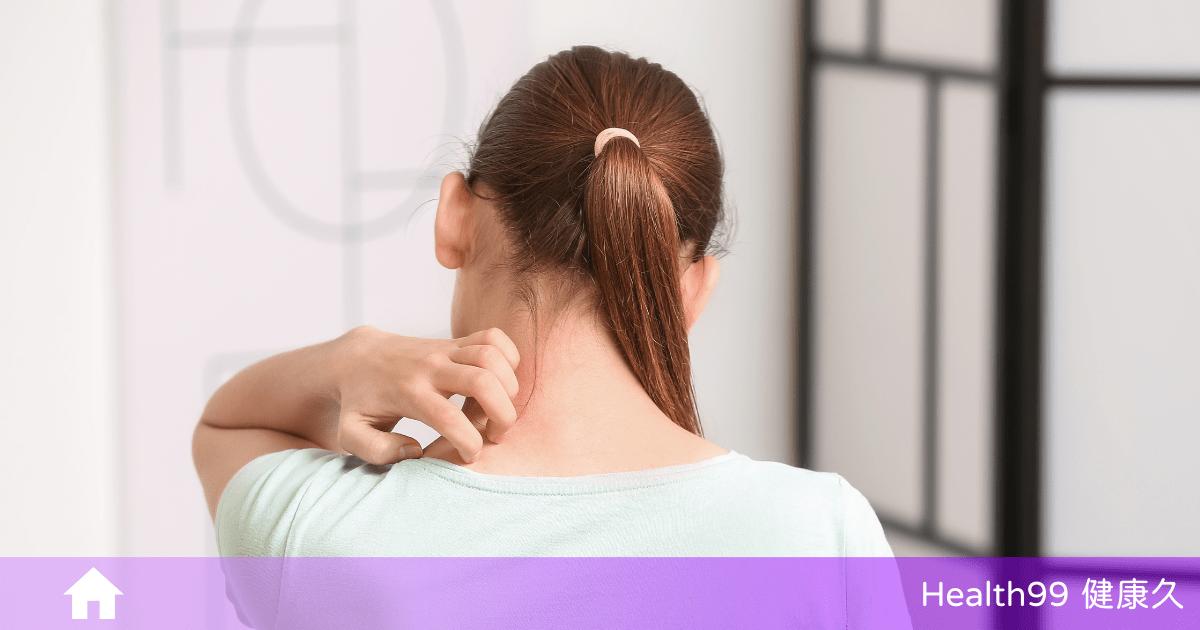 皮膚過敏怎麼辦?擺脫惱人症狀,這些照護須知你一定要知道!