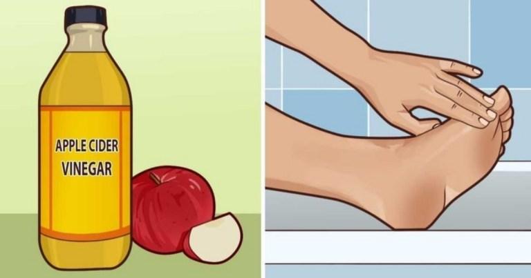 起「水泡」千萬別急著戳破!小心恢復慢又感染!試試這些「天然快速」的治療方法吧!