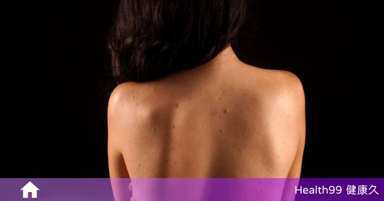 背上長痘痘怎麼辦?為甚麼背部也會長痘痘呢?該如何擊退它?