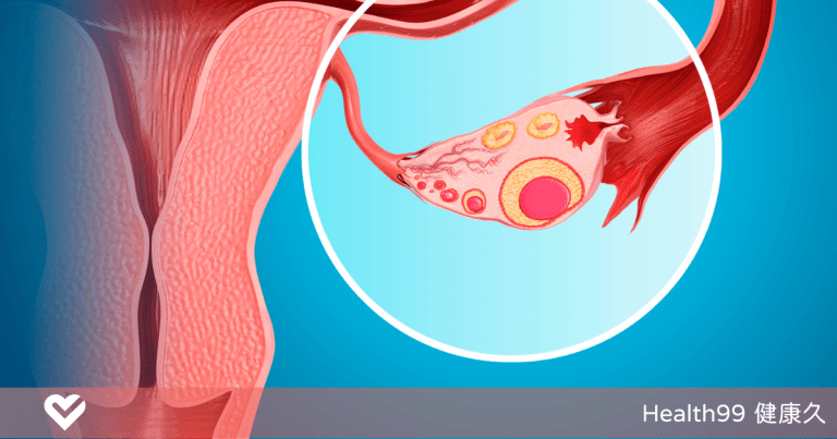 【月經保養】你暸解假性月經嗎?無排卵性月經是什麼?是什麼原因造成的?