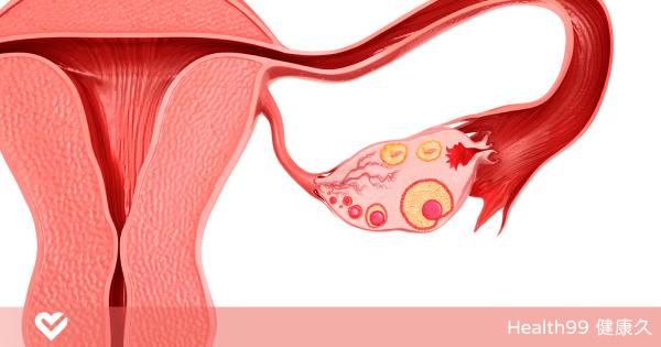 子宮內膜增厚